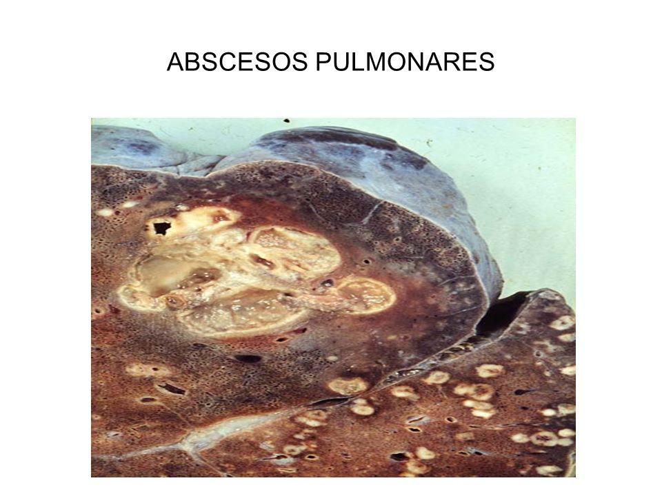 EXUDADO PURULENTO