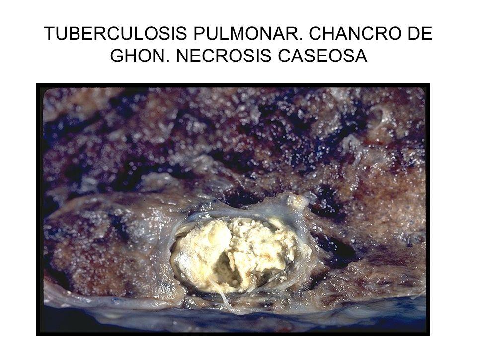 TUBERCULOSIS PULMONAR. CHANCRO DE GHON. NECROSIS CASEOSA