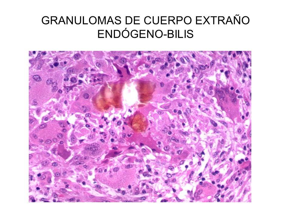 GRANULOMAS DE CUERPO EXTRAÑO ENDÓGENO-BILIS