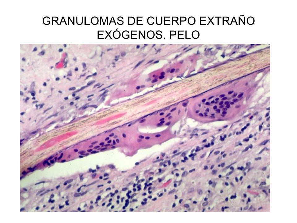 GRANULOMAS DE CUERPO EXTRAÑO EXÓGENOS. PELO