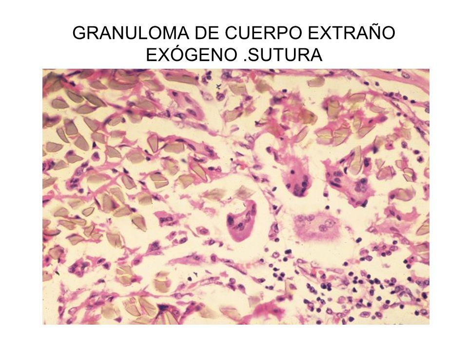 GRANULOMA DE CUERPO EXTRAÑO EXÓGENO.SUTURA