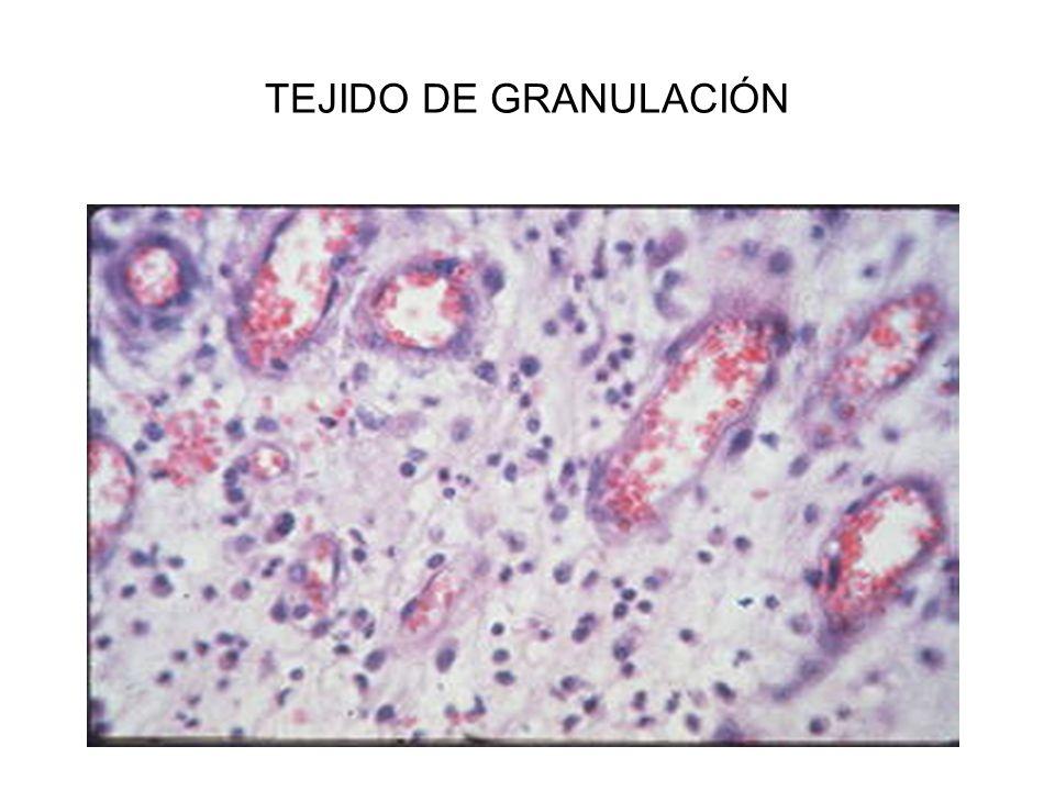 SARCOIDOSIS PULMONAR GRANULOMAS NO NECROTIZANTES