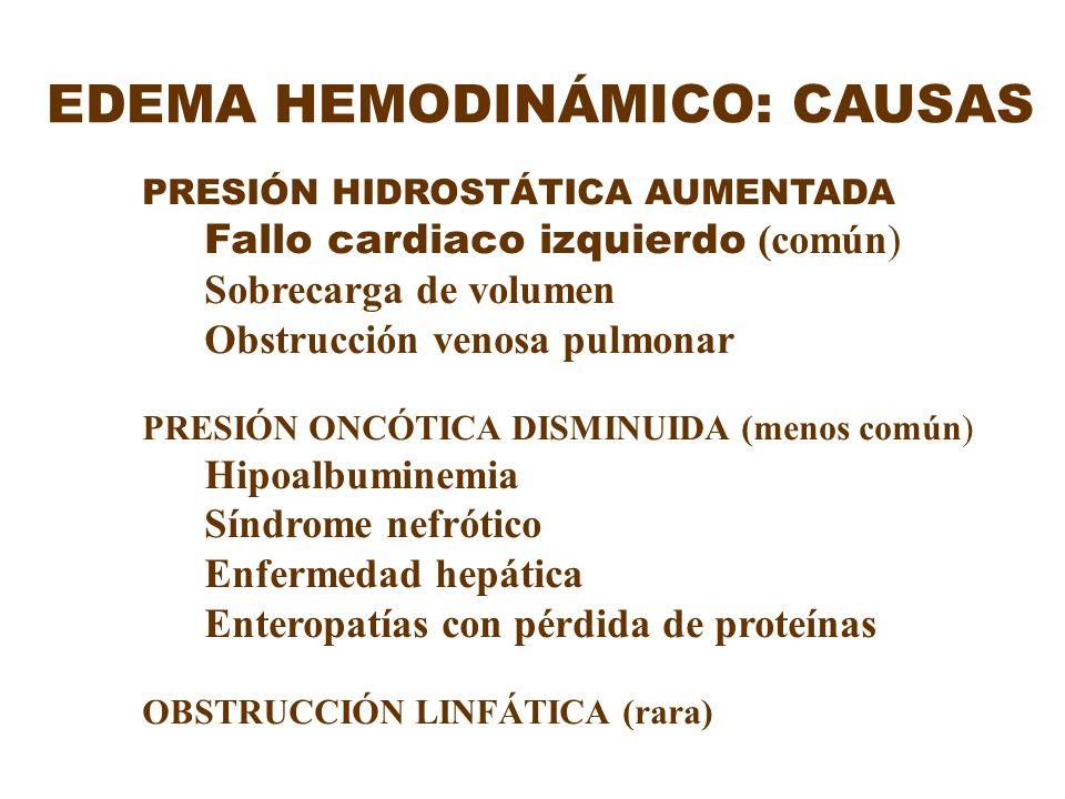 EDEMA HEMODINÁMICO: CAUSAS PRESIÓN HIDROSTÁTICA AUMENTADA Fallo cardiaco izquierdo (común) Sobrecarga de volumen Obstrucción venosa pulmonar PRESIÓN O