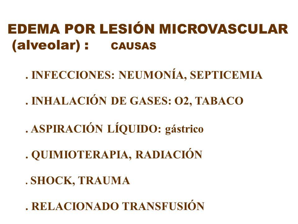 EDEMA POR LESIÓN MICROVASCULAR (alveolar) : CAUSAS. INFECCIONES: NEUMONÍA, SEPTICEMIA. INHALACIÓN DE GASES: O2, TABACO. ASPIRACIÓN LÍQUIDO: gástrico.