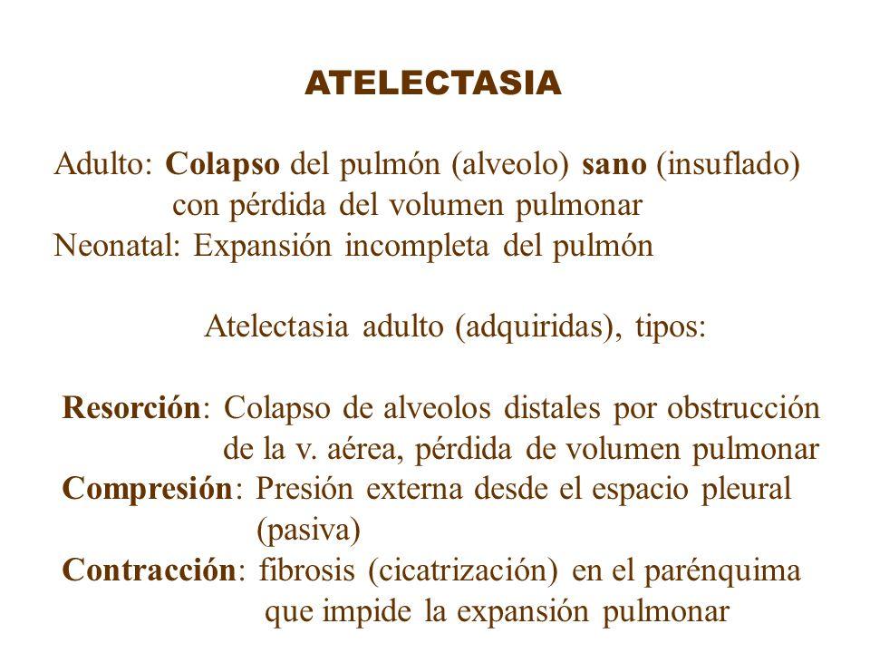 ATELECTASIA Adulto: Colapso del pulmón (alveolo) sano (insuflado) con pérdida del volumen pulmonar Neonatal: Expansión incompleta del pulmón Atelectas