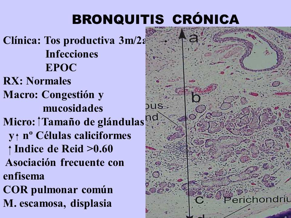 Clínica: Tos productiva 3m/2a Infecciones EPOC RX: Normales Macro: Congestión y mucosidades Micro: Tamaño de glándulas y nº Células caliciformes Indic