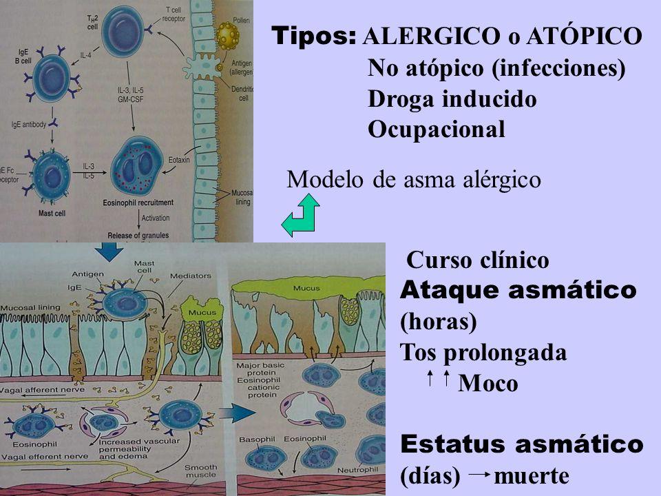 Tipos: ALERGICO o ATÓPICO No atópico (infecciones) Droga inducido Ocupacional Curso clínico Ataque asmático (horas) Tos prolongada Moco Estatus asmáti