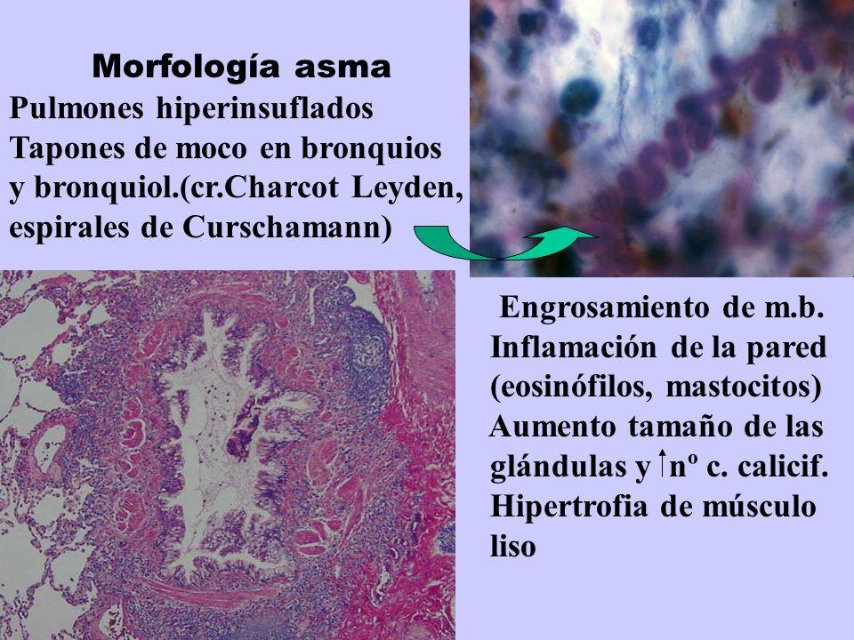 Morfología asma Pulmones hiperinsuflados Tapones de moco en bronquios y bronquiol.(cr.Charcot Leyden, espirales de Curschamann) Engrosamiento de m.b.