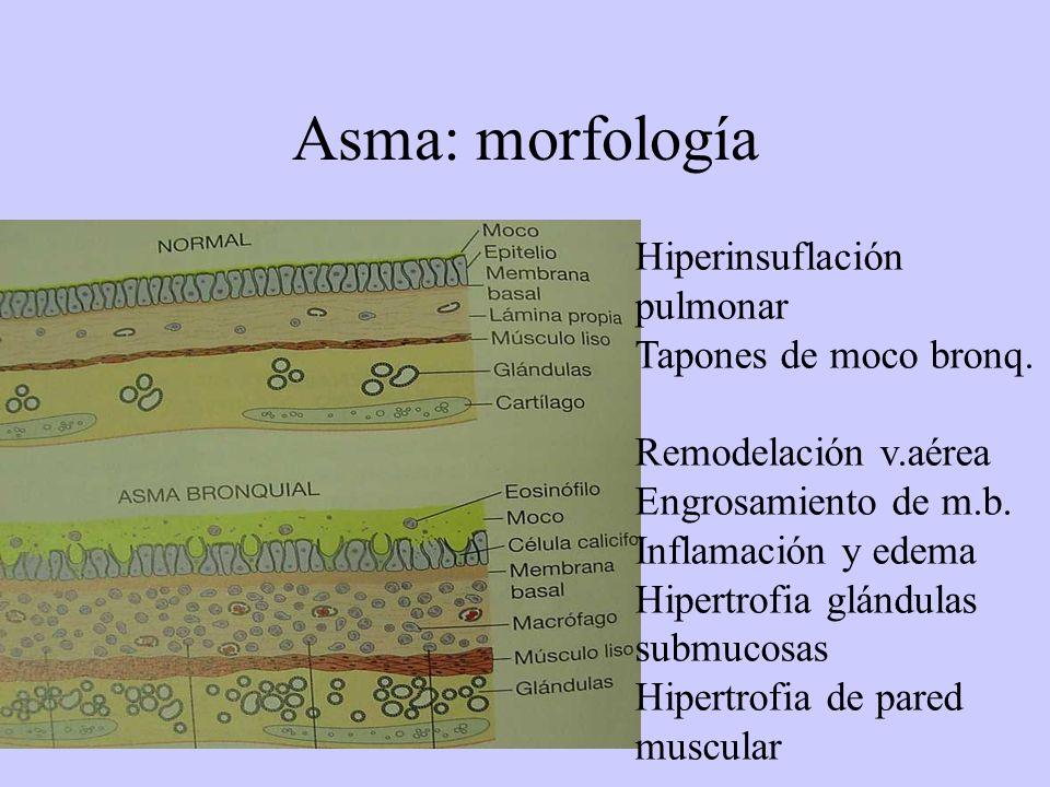 Asma: morfología Hiperinsuflación pulmonar Tapones de moco bronq. Remodelación v.aérea Engrosamiento de m.b. Inflamación y edema Hipertrofia glándulas