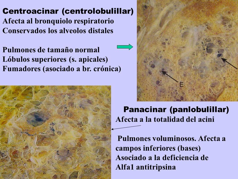 Centroacinar (centrolobulillar) Afecta al bronquiolo respiratorio Conservados los alveolos distales Pulmones de tamaño normal Lóbulos superiores (s. a