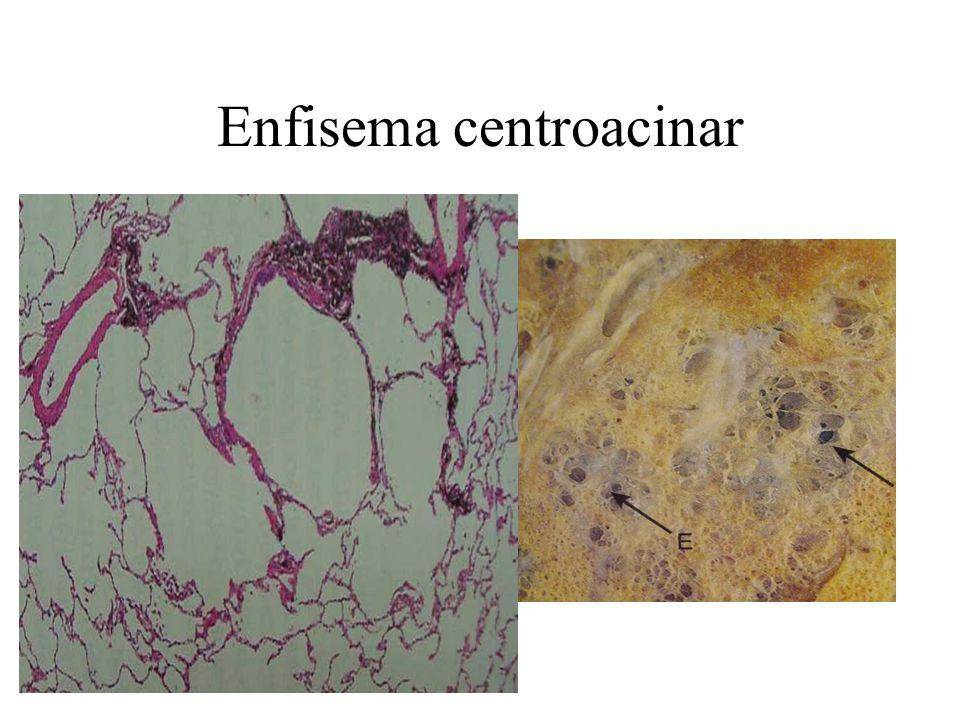 Enfisema centroacinar