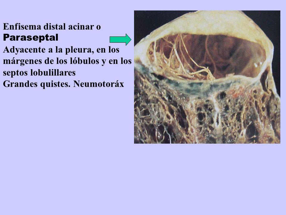 Enfisema distal acinar o Paraseptal Adyacente a la pleura, en los márgenes de los lóbulos y en los septos lobulillares Grandes quistes. Neumotoráx
