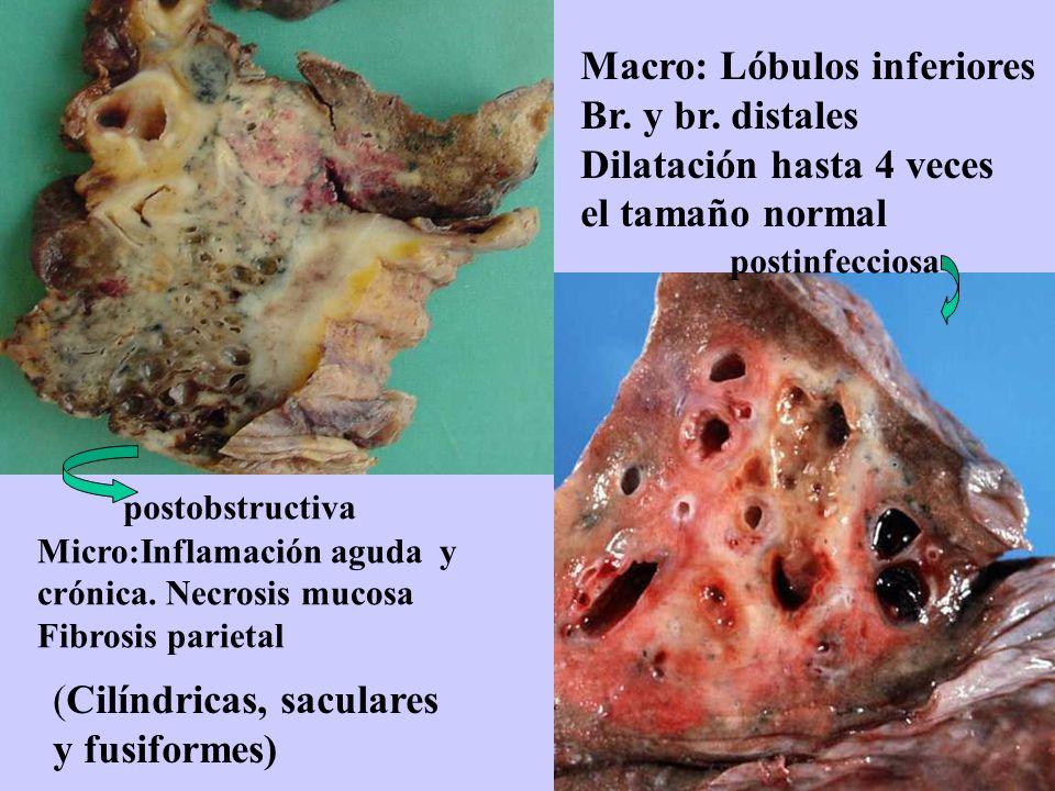 Macro: Lóbulos inferiores Br. y br. distales Dilatación hasta 4 veces el tamaño normal Micro:Inflamación aguda y crónica. Necrosis mucosa Fibrosis par
