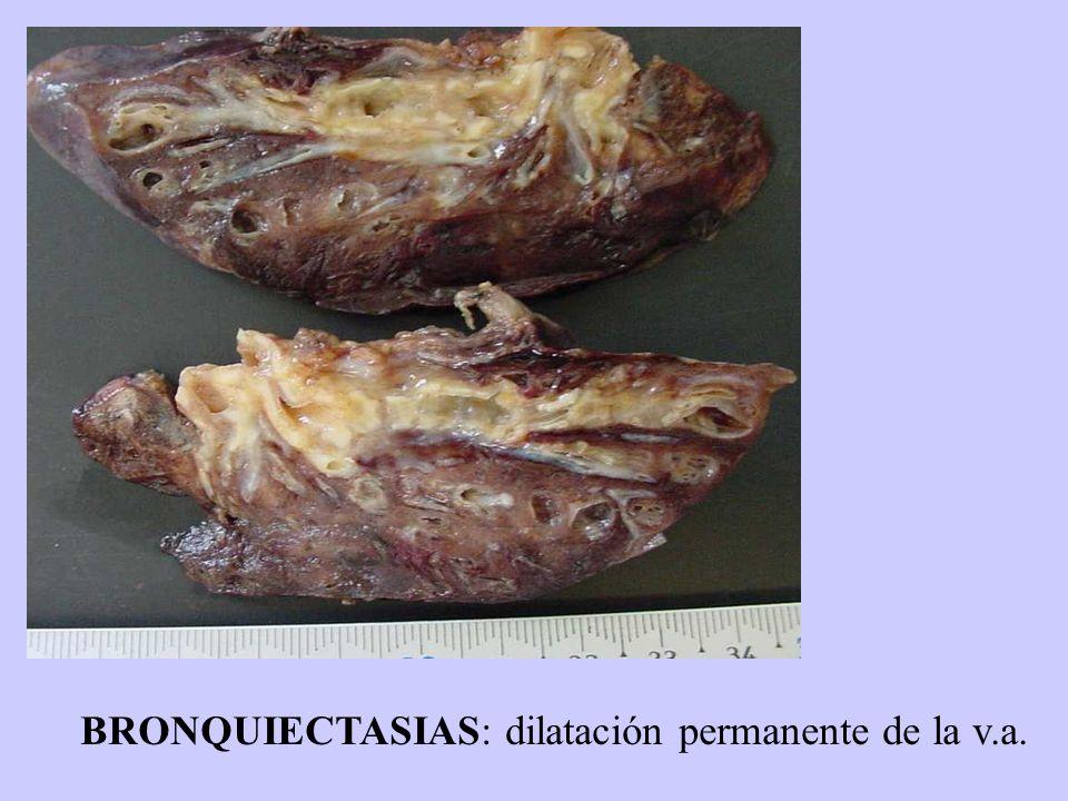 BRONQUIECTASIAS: dilatación permanente de la v.a.