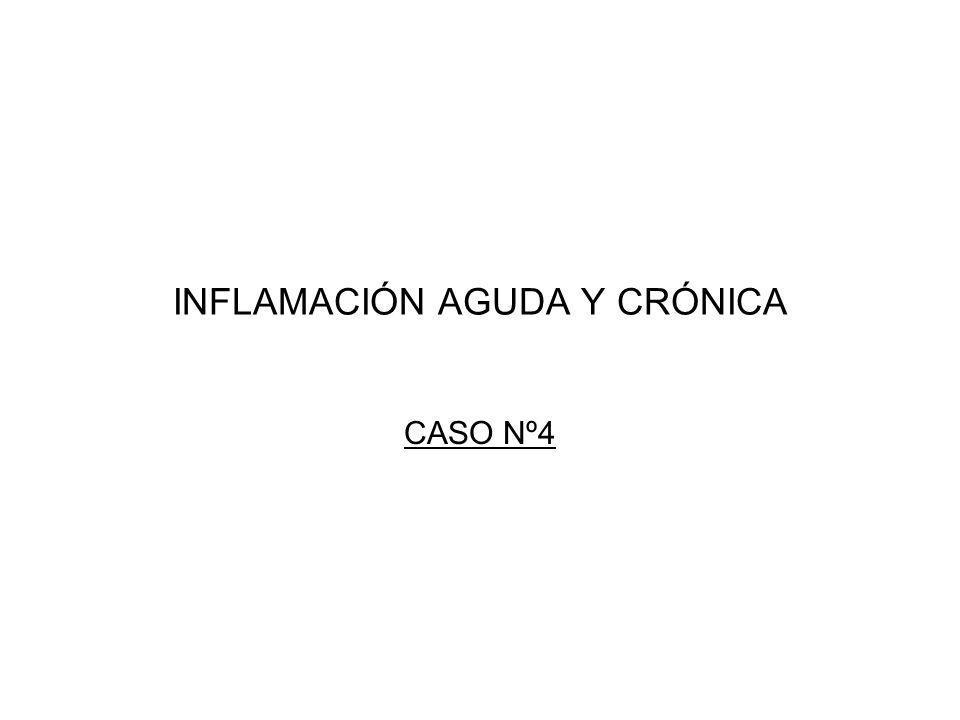 INFLAMACIÓN AGUDA Y CRÓNICA CASO Nº4