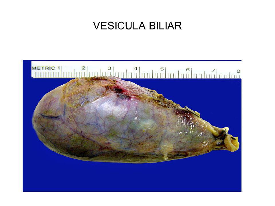 VESICULA BILIAR
