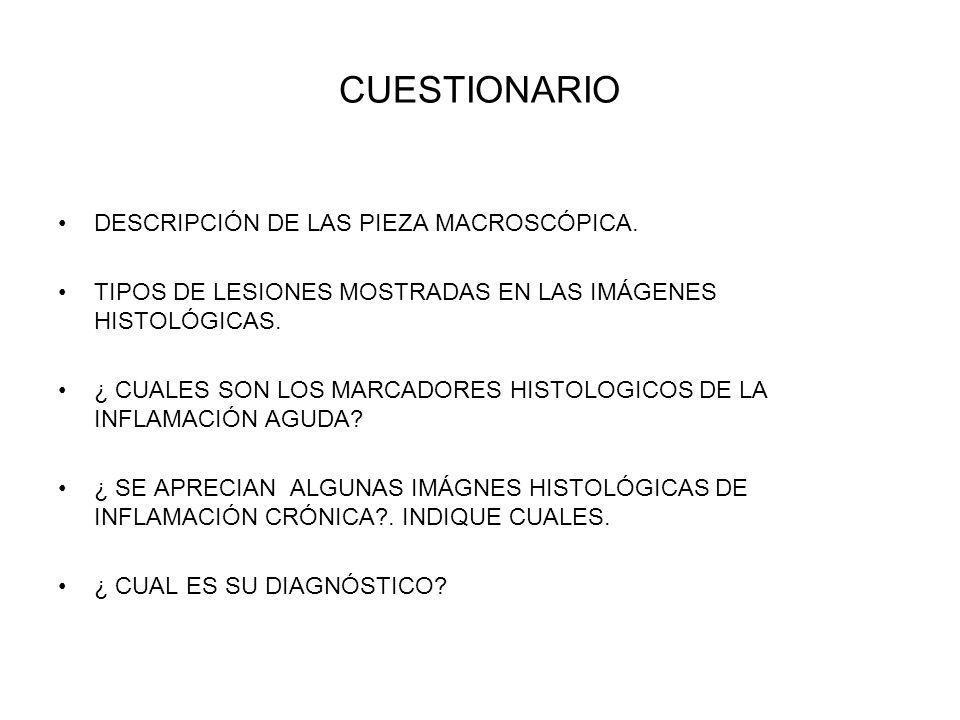 CUESTIONARIO DESCRIPCIÓN DE LAS PIEZA MACROSCÓPICA. TIPOS DE LESIONES MOSTRADAS EN LAS IMÁGENES HISTOLÓGICAS. ¿ CUALES SON LOS MARCADORES HISTOLOGICOS