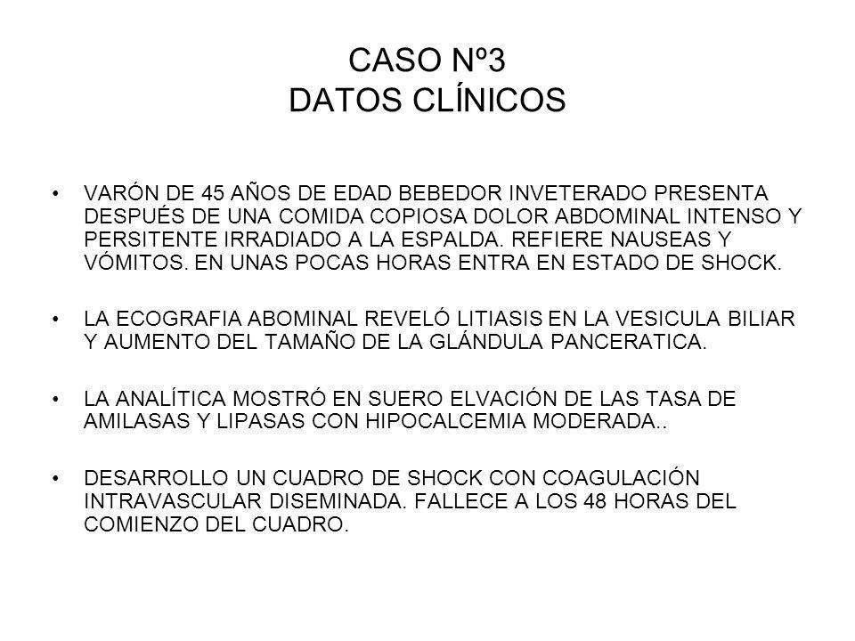 CASO Nº3 DATOS CLÍNICOS VARÓN DE 45 AÑOS DE EDAD BEBEDOR INVETERADO PRESENTA DESPUÉS DE UNA COMIDA COPIOSA DOLOR ABDOMINAL INTENSO Y PERSITENTE IRRADI