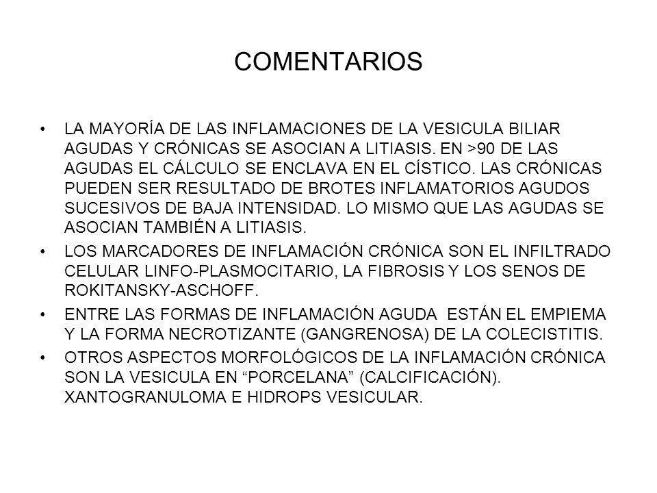 COMENTARIOS LA MAYORÍA DE LAS INFLAMACIONES DE LA VESICULA BILIAR AGUDAS Y CRÓNICAS SE ASOCIAN A LITIASIS. EN >90 DE LAS AGUDAS EL CÁLCULO SE ENCLAVA