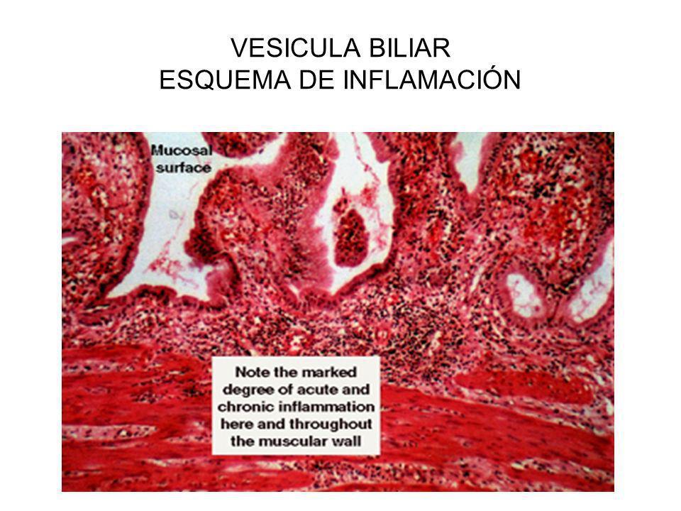VESICULA BILIAR ESQUEMA DE INFLAMACIÓN