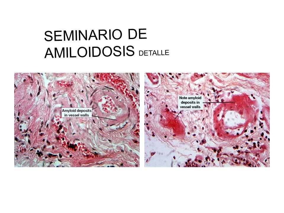 SEMINARIO DE AMILOIDOSIS DETALLE