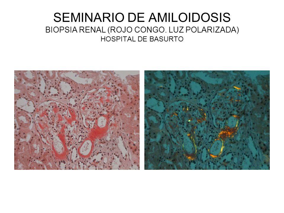 SEMINARIO DE AMILOIDOSIS BIOPSIA RENAL (ROJO CONGO. LUZ POLARIZADA) HOSPITAL DE BASURTO