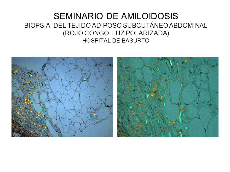 SEMINARIO DE AMILOIDOSIS BIOPSIA DEL TEJIDO ADIPOSO SUBCUTÁNEO ABDOMINAL (ROJO CONGO. LUZ POLARIZADA) HOSPITAL DE BASURTO