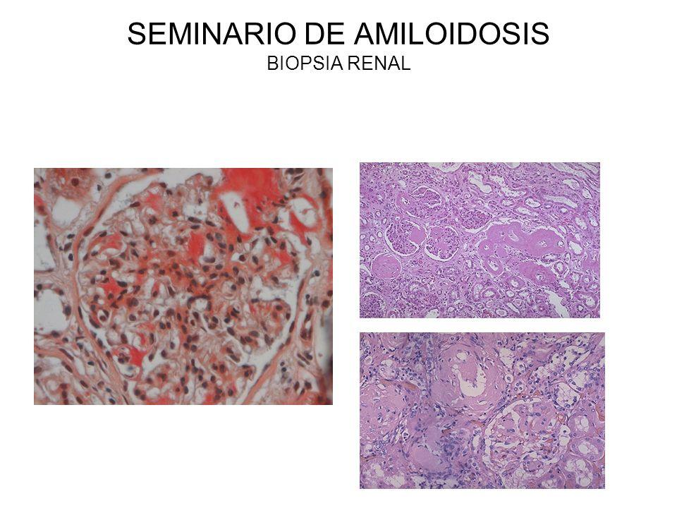 SEMINARIO DE AMILOIDOSIS BIOPSIA RENAL