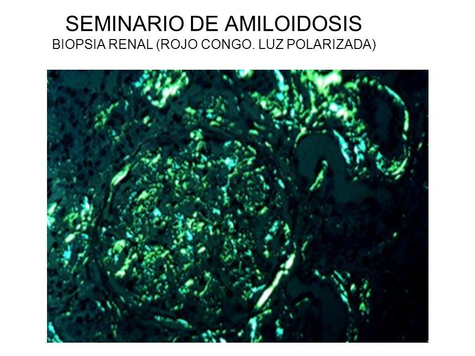 SEMINARIO DE AMILOIDOSIS BIOPSIA RENAL (ROJO CONGO. LUZ POLARIZADA)