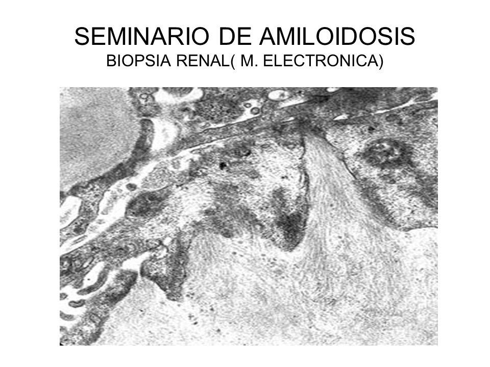 SEMINARIO DE AMILOIDOSIS BIOPSIA RENAL( M. ELECTRONICA)