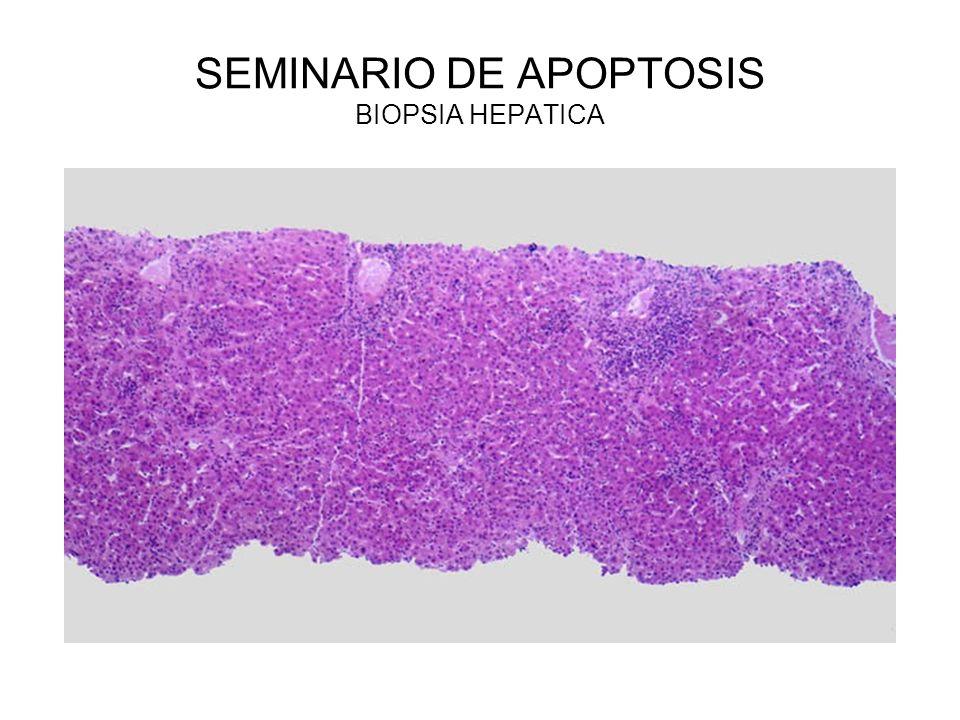 SEMINARIO DE APOPTOSIS BIOPSIA HEPATICA