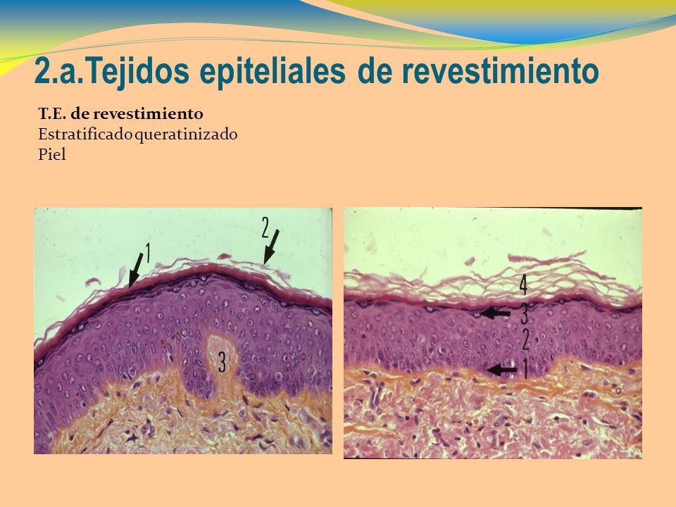 2.a.Tejidos epiteliales de revestimiento T.E. de revestimiento Estratificado queratinizado Piel