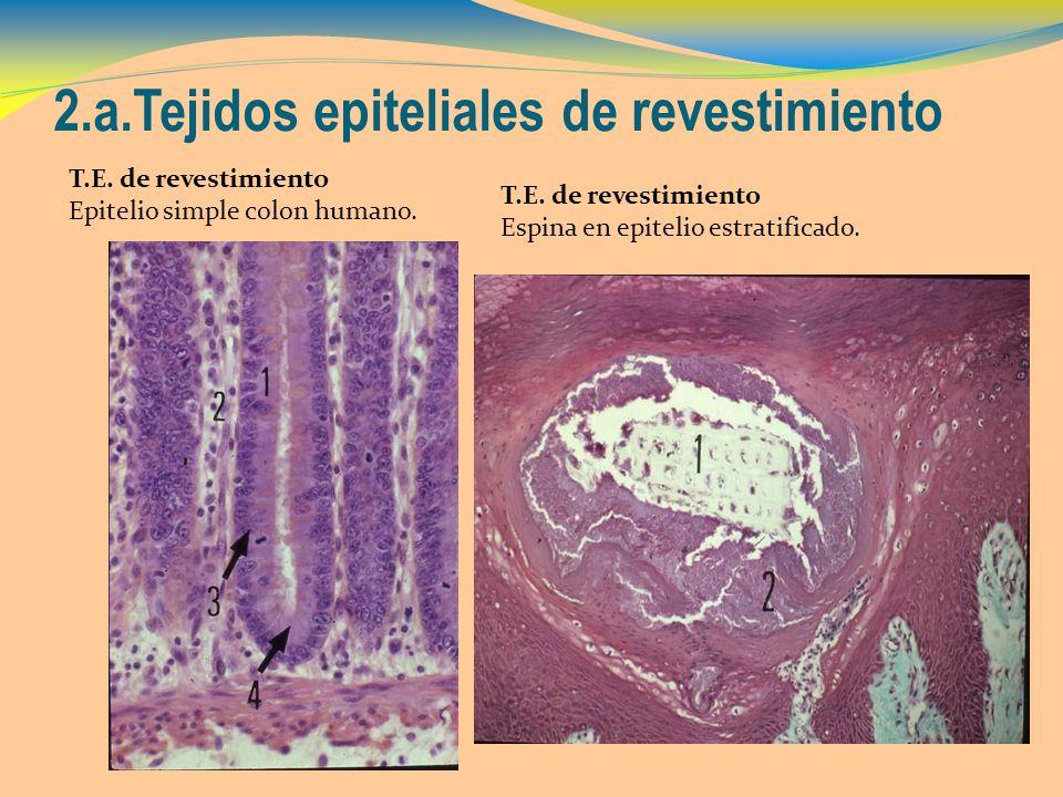 2.a.Tejidos epiteliales de revestimiento T.E. de revestimiento Epitelio simple colon humano. T.E. de revestimiento Espina en epitelio estratificado.