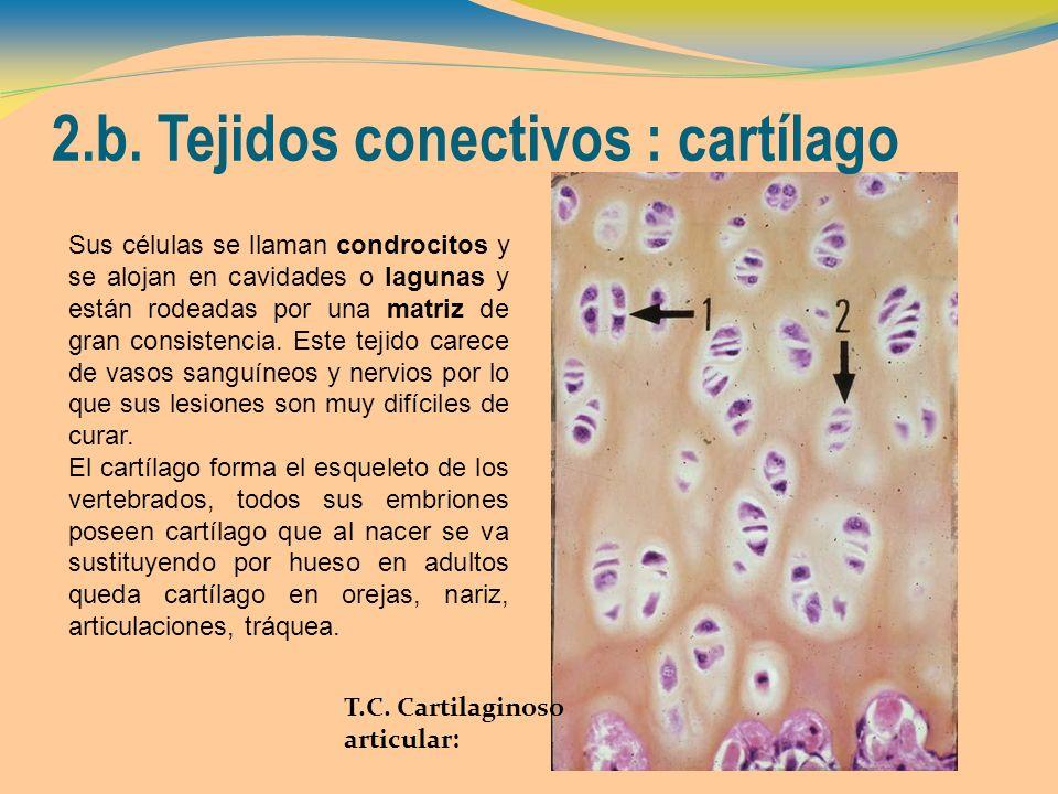 2.b. Tejidos conectivos : cartílago T.C. Cartilaginoso articular: Sus células se llaman condrocitos y se alojan en cavidades o lagunas y están rodeada