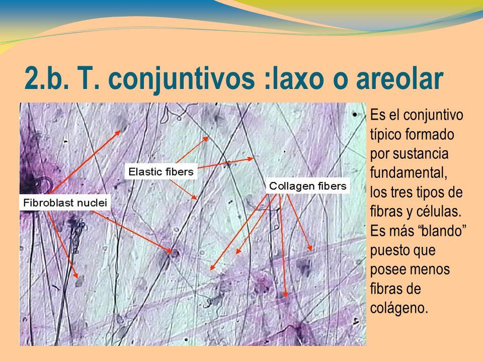 2.b. T. conjuntivos :laxo o areolar Es el conjuntivo típico formado por sustancia fundamental, los tres tipos de fibras y células. Es más blando puest