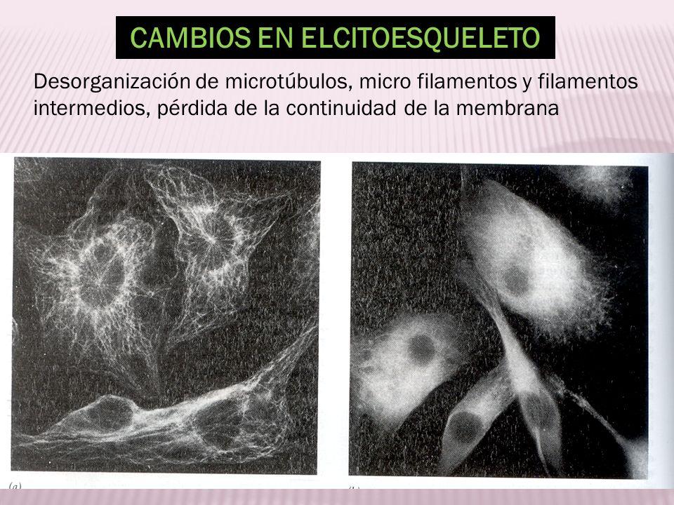 CAMBIOS EN ELCITOESQUELETO Desorganización de microtúbulos, micro filamentos y filamentos intermedios, pérdida de la continuidad de la membrana