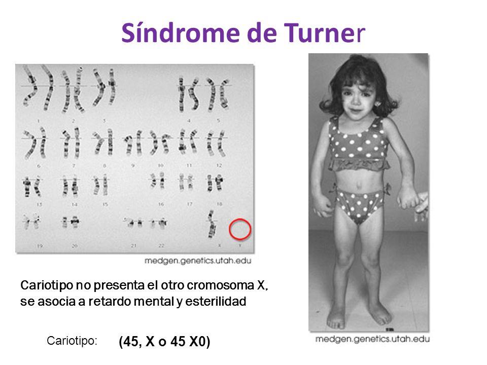 Síndrome de Turner Cariotipo no presenta el otro cromosoma X, se asocia a retardo mental y esterilidad Cariotipo: (45, X o 45 X0)