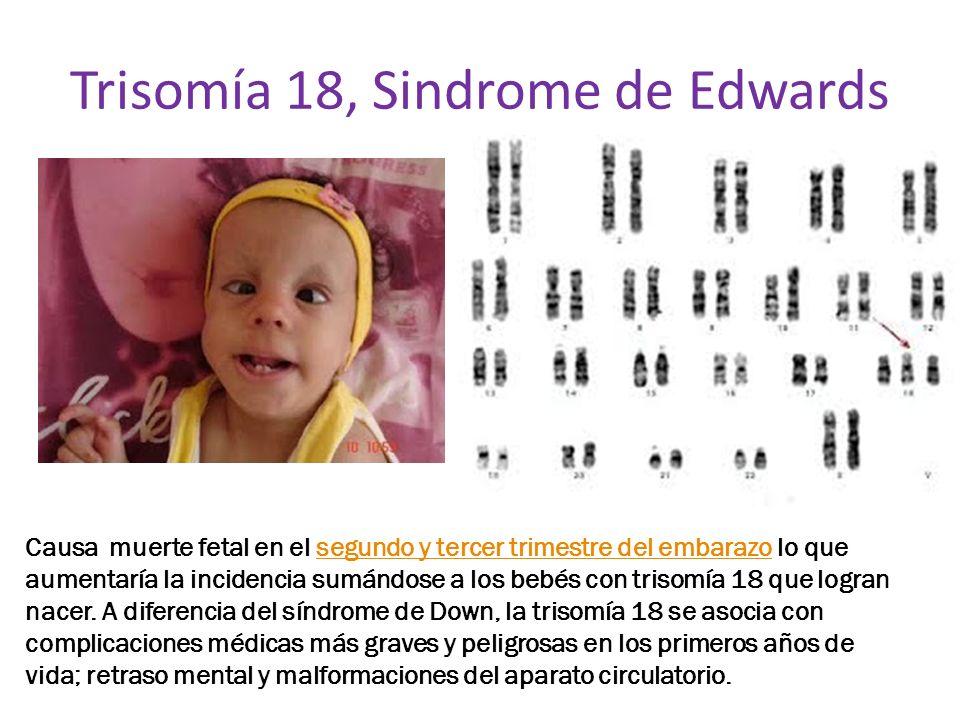 Trisomía 18, Sindrome de Edwards Causa muerte fetal en el segundo y tercer trimestre del embarazo lo que aumentaría la incidencia sumándose a los bebé