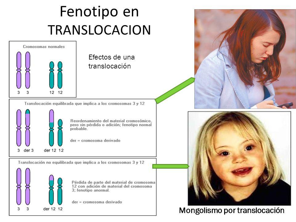 Fenotipo en TRANSLOCACION Efectos de una translocación Mongolismo por translocación