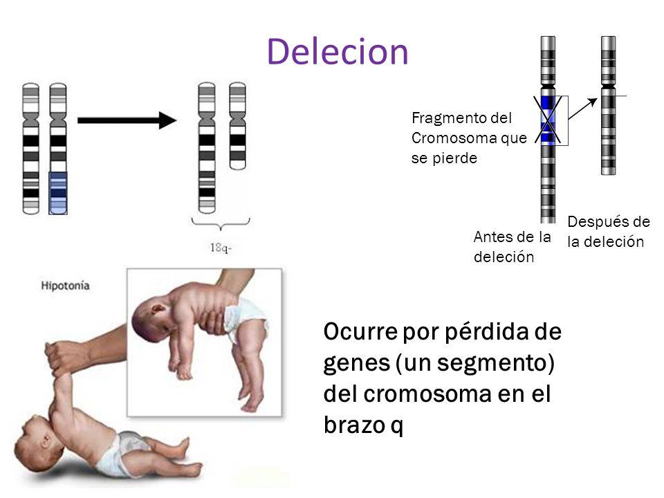 Delecion Antes de la deleción Después de la deleción Fragmento del Cromosoma que se pierde Ocurre por pérdida de genes (un segmento) del cromosoma en
