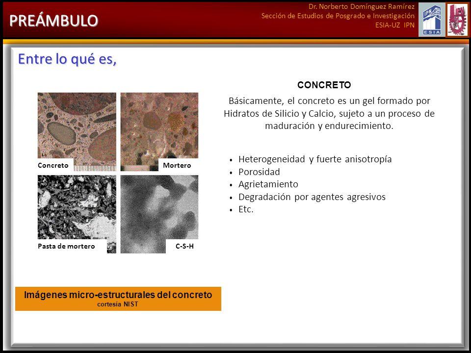 Dr. Norberto Domínguez Ramírez Sección de Estudios de Posgrado e Investigación ESIA-UZ IPN PREÁMBULO Entre lo qué es, Imágenes micro-estructurales del