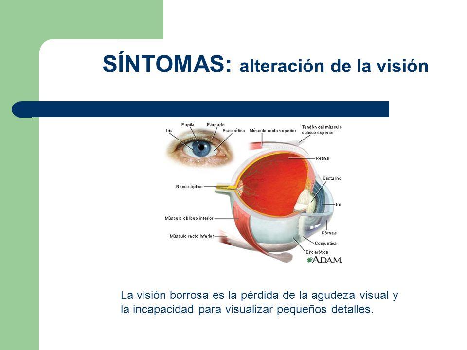 SÍNTOMAS: alteración de la visión La visión borrosa es la pérdida de la agudeza visual y la incapacidad para visualizar pequeños detalles.