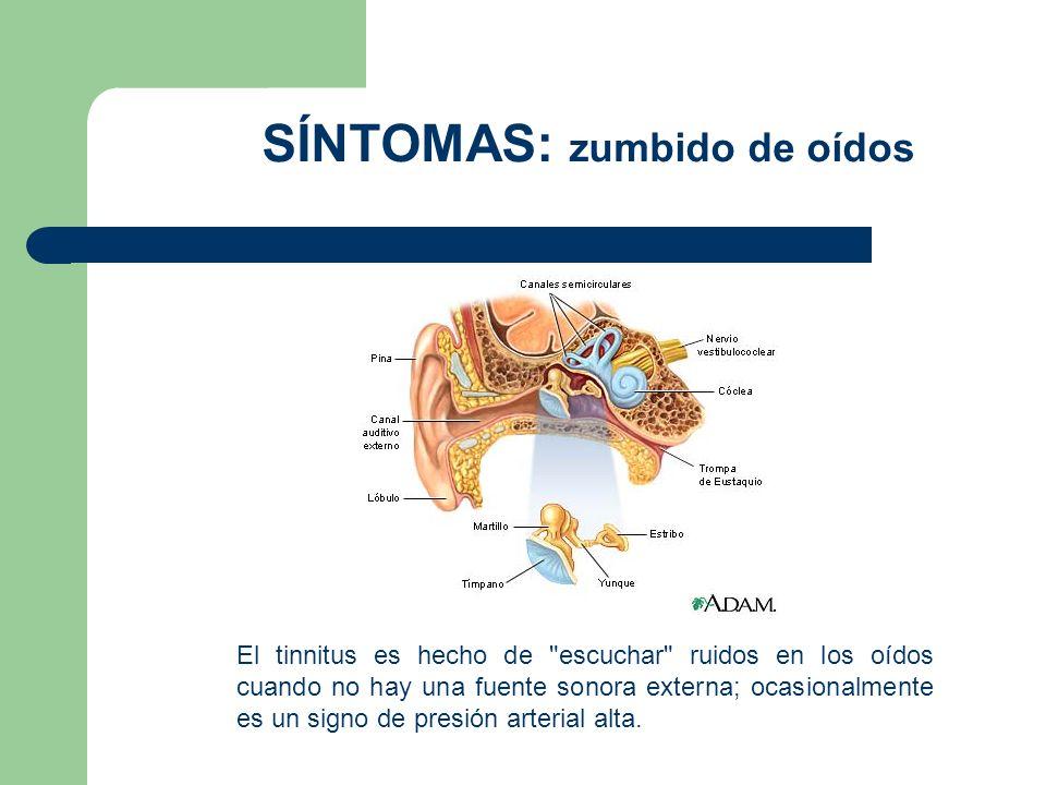 El tinnitus es hecho de