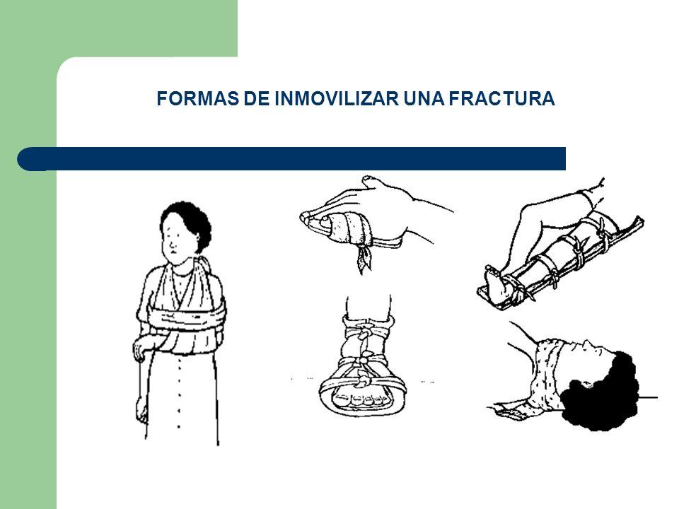 FORMAS DE INMOVILIZAR UNA FRACTURA