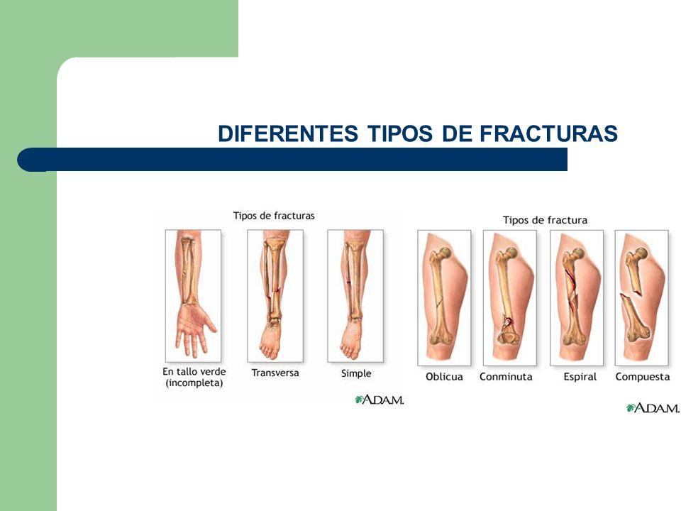 DIFERENTES TIPOS DE FRACTURAS