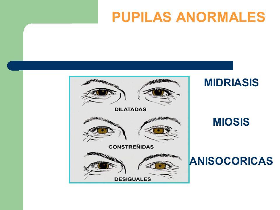 PUPILAS ANORMALES MIDRIASIS MIOSIS ANISOCORICAS