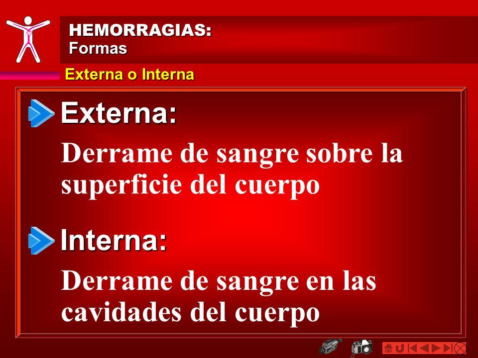 Externa o Interna HEMORRAGIAS:Formas Externa: Interna: Derrame de sangre sobre la superficie del cuerpo Derrame de sangre en las cavidades del cuerpo