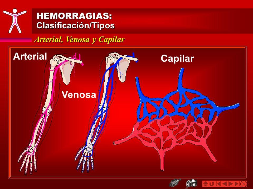 Arterial: Características HEMORRAGIAS:Clasificación/Tipos Brota a chorro Fluye a borbotones e intermitente, a ritmo de las pulsaciones del corazón Color rojo vivo/brillante (sangre oxigenada) Es una hemorragia grave