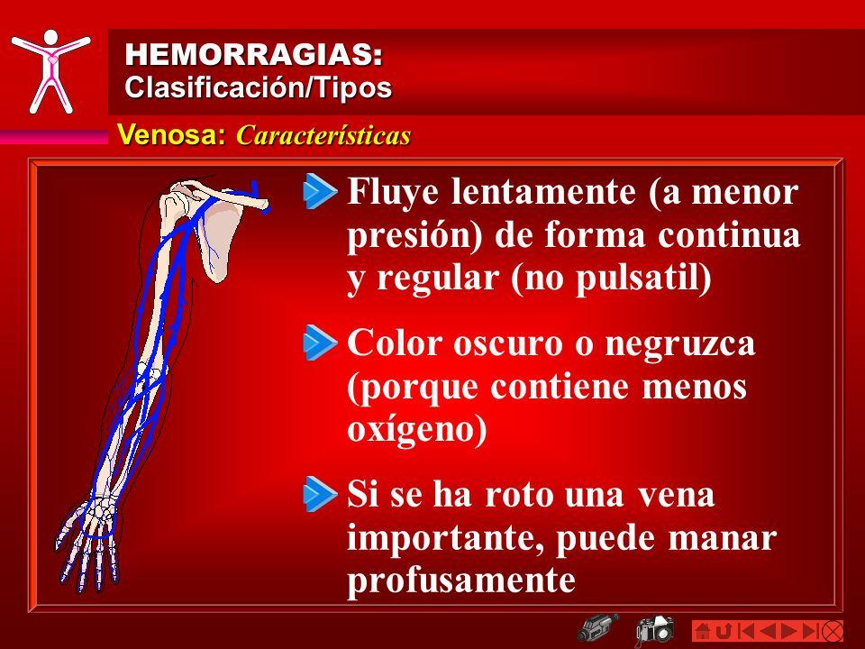 Capilar: Características HEMORRAGIAS:Clasificación/Tipos Emana lentamente y de manera regular El color varía, puesto que los vasos pueden contener sangre venosa o arterial No representa peligro inmediato Común en heridas menores y abraciones
