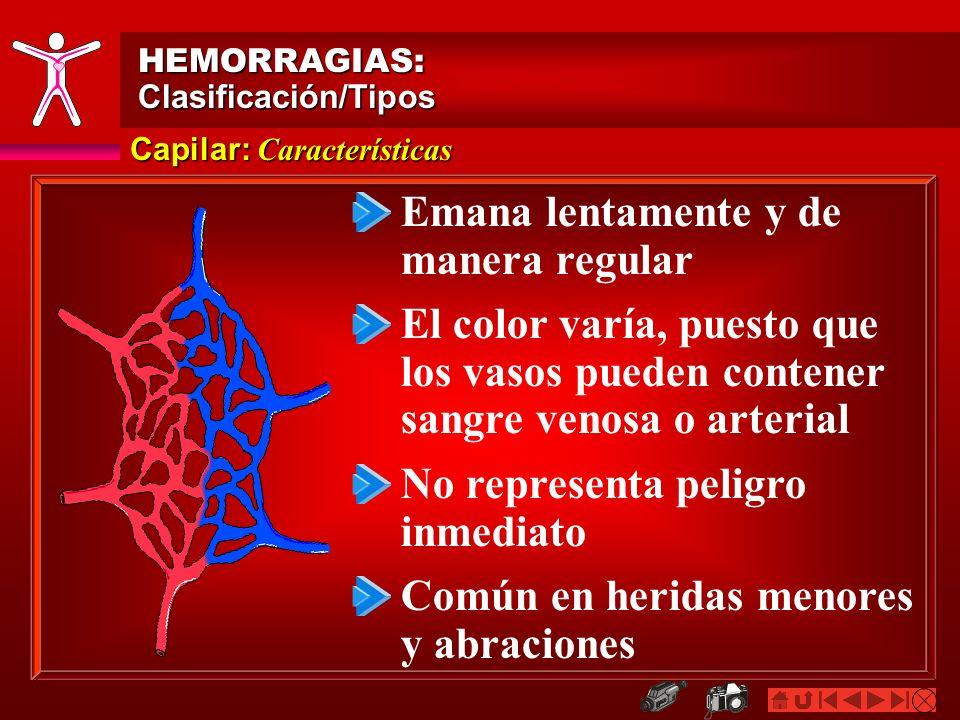 Capilar: Características HEMORRAGIAS:Clasificación/Tipos Emana lentamente y de manera regular El color varía, puesto que los vasos pueden contener san